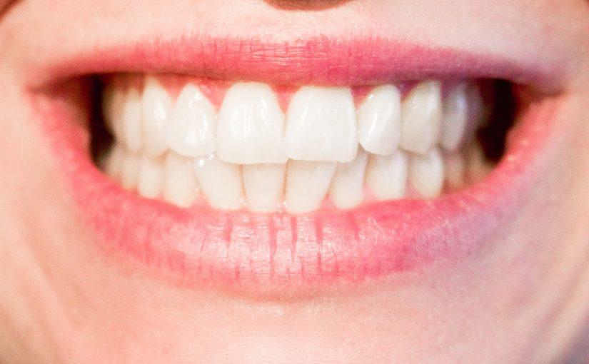 Dzisiejsza technika wykorzystywana w salonach stomatologii estetycznej zdoła sprawić, że odbierzemy ładny uśmieszek.