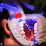 Zła sposób odżywiania się to większe braki w jamie ustnej oraz również ich brak